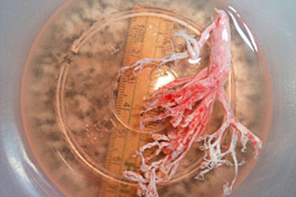 Kinder mit Bronchitis Plastica können an diesen sogenannten Casts qualvoll ersticken. Mehr über lebensgefährliche Komplikationen unter Menüpunkt FORSCHUNG/Fontankomplikation